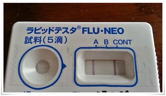 インフルエンザ(A型)発症!